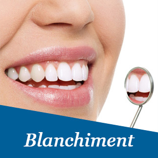 Blanchiment des dents photo