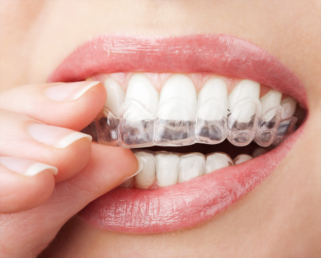 Orthodontie sans broches invisalign image Montréal