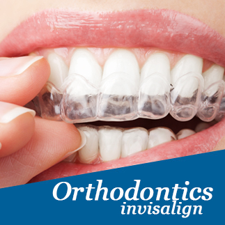 Wireless orthodontics (Invisalign), service photo