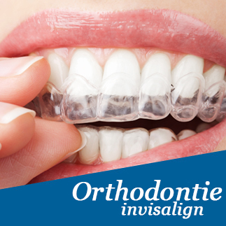 invisalign orthodontie sans broches photo