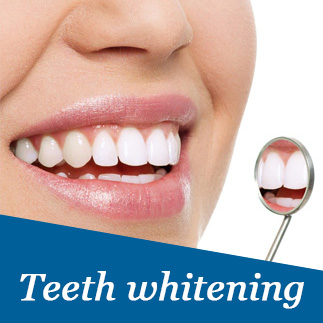 Teeth whitening service photo