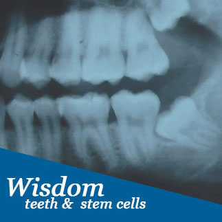 Widsom teeth and stem cells, service photo
